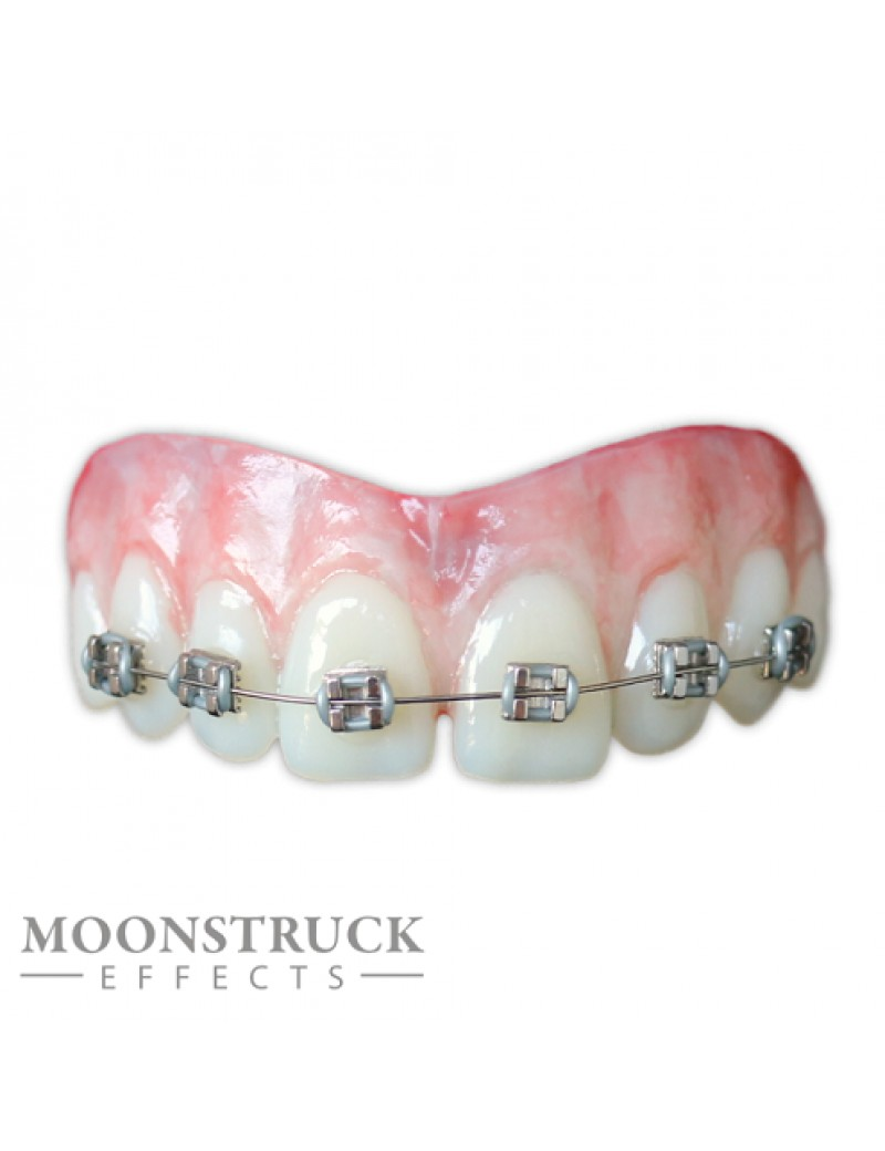 Moonstruck Effects Lemmy ProFX Teeth With Braces